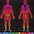 Imagem infravermelha do corpo humano antes e depois de uma corrida ao ar livre (30°C e umidade de 75%) - Adaptado de Complete Soccer Training.